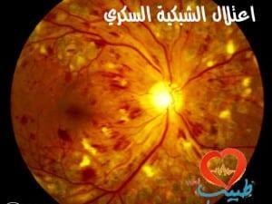 اعتلال الشبكية السكري Diabetic retinopathy