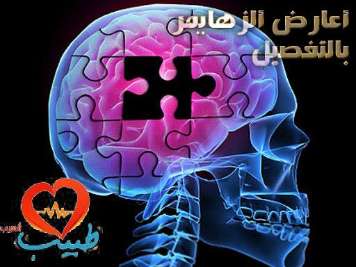 Photo of أعراض الزهايمر
