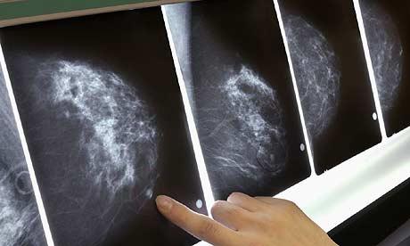 mammogram460