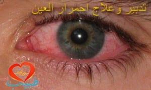 pink_eye1