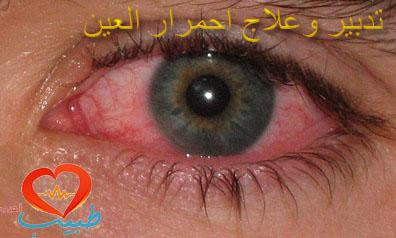 Photo of علاج احمرار العين