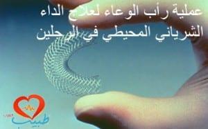stent-flex