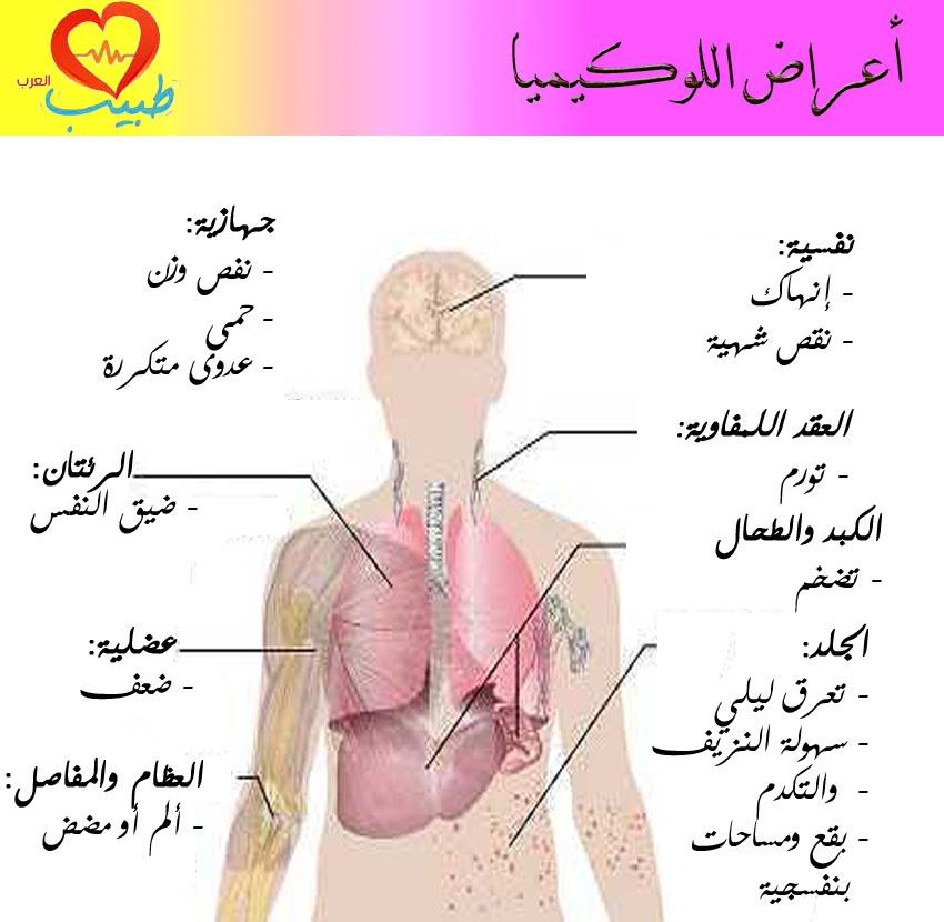 أعراض اللوكيميا لدى الأطفال