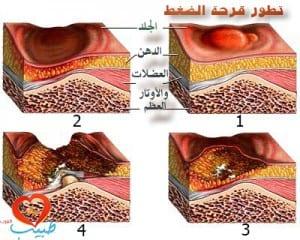 قرحة الضغط ( قرحة الفراش ) pressure ulcer