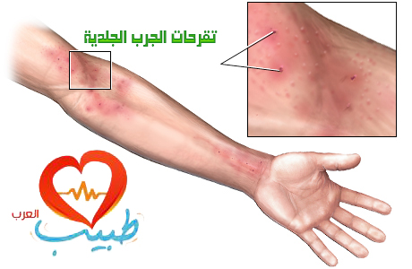 Photo of داء الجرب Scabies