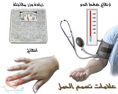 أعراض وعلامات تسمم الحمل تشمل ارتفاع ضغط الدم وزيادة الوزن المفاجئة وانتفاخ وتورم اليدين