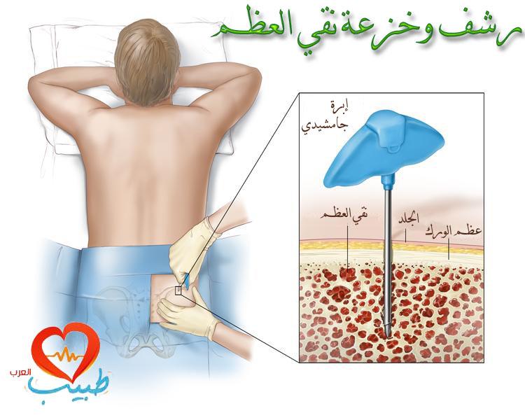 طبيب عرب دم