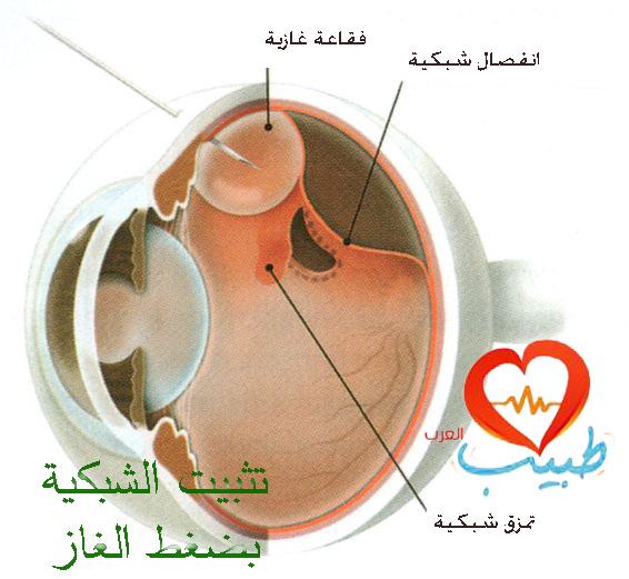 طبيب عرب عيون 13