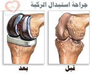 طبيب عرب هظمية 22