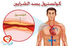 طبيب عر قلب 11
