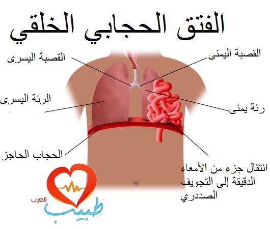 Photo of فتق الحجاب الحاجز Diaphragmatic Hernia
