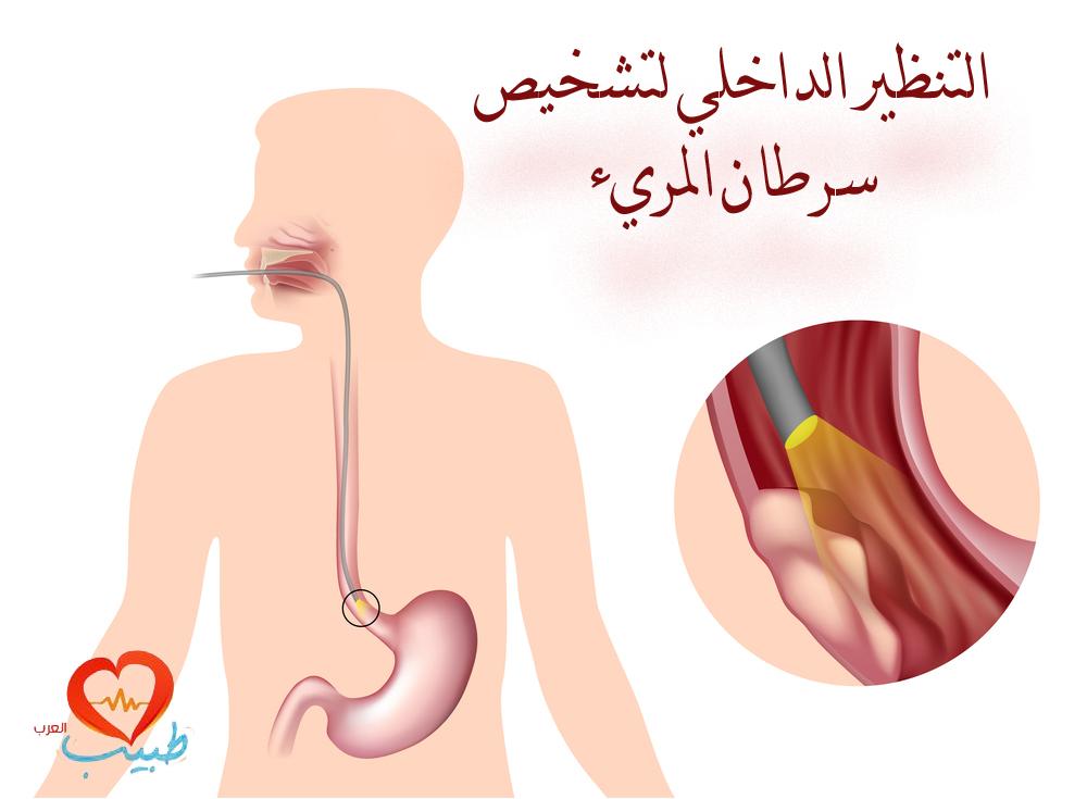 Photo of سرطان المريء بين الوقاية وأسباب المرض
