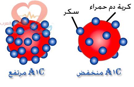 الهيموجلوبين السكري HbA1C