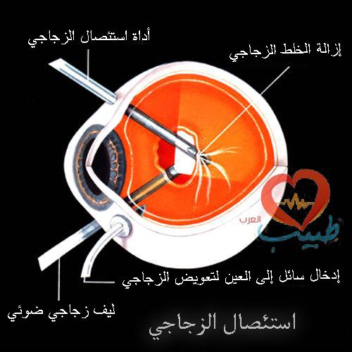 طبيب ع عيزن 14