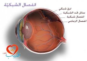 طبيب ع عينية 11