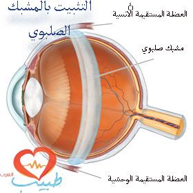 طبيب ع عيون 15