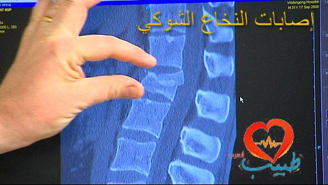 Photo of إصابات النخاع الشوكي Spinal Cord injury