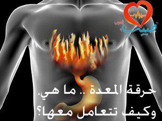 Photo of حرقة المعدة ( Heartburn ) ما هي، وكيف تتعامل معها؟