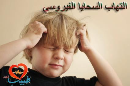 Photo of التهاب السحايا الفيروسي Viral Meningitis