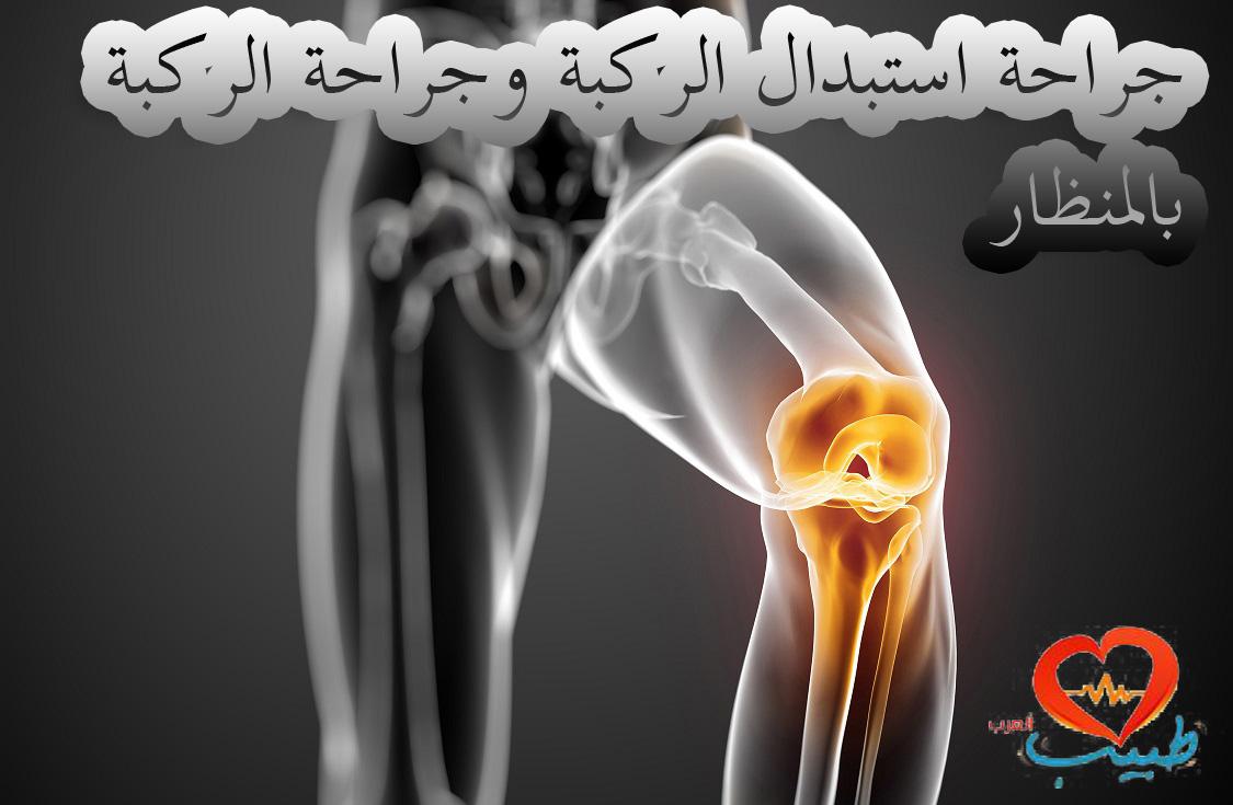 Photo of جراحة الركبة بالمنظار (جراحة استبدال الركبة بالمنظار)