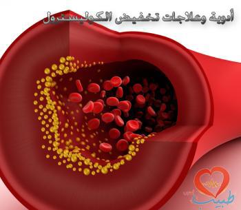 Photo of أدوية وعلاجات تخفيض الكوليسترول