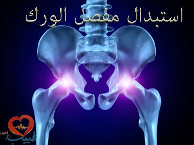 Photo of استبدال مفصل الورك