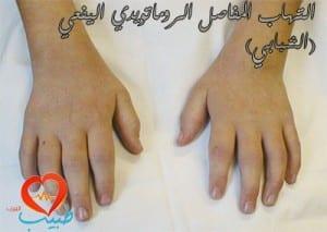 juvenile idiopathic artheritis