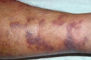 kaposis-sarcoma