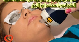 laser-acne-treatment