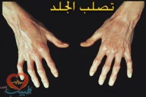 scleroderma-hand_jpg