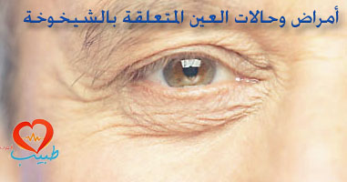 Photo of أمراض وحالات العين المتعلقة بالشيخوخة