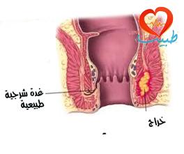 طبيب عرب جراحة هراج