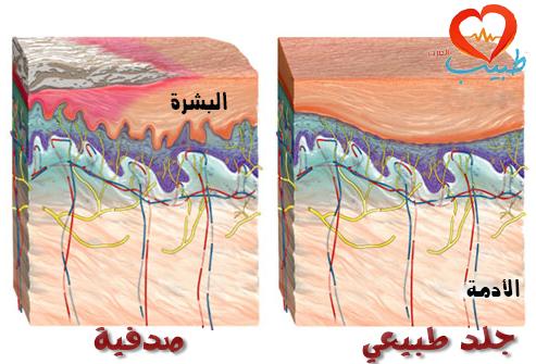 المعالجة الدوائية للصدفية ( psoriasis treatment )