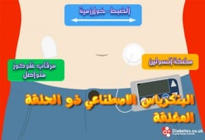 طبيب عرب داخلية بنكرياس صناعي