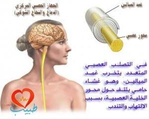 طبيب عرب عصبية تصلب