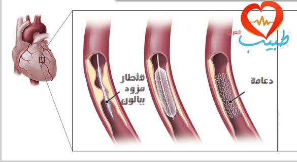 دعامة القلب عبارة عن شبكة معدنية ملفوفة حول القسطرة البالونية