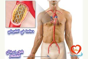 طبيب عرب قلبية دهامة 1