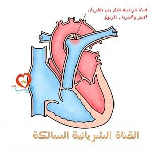طبيب ع قلبية ثناة شريانية 2