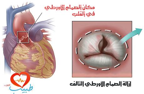 طبيب قلب
