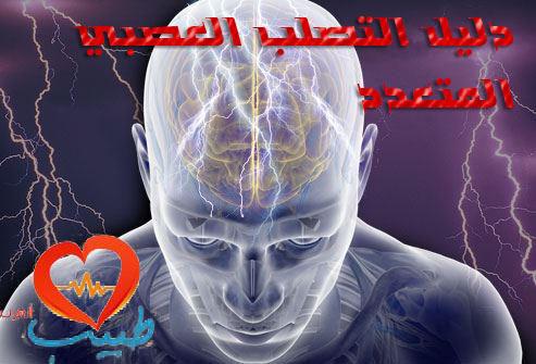Photo of التصلب المتعدد العصبي Multiple sclerosis