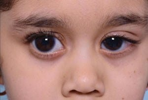 Pediatric Glaucoma Review of Ophthalmology-5