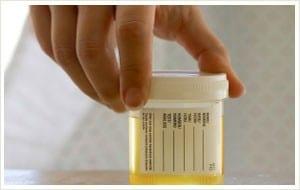 زرع البول - مزرعة البول Urine Culture