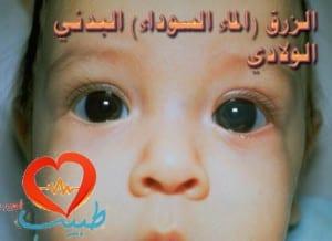 glaucoma-congenital