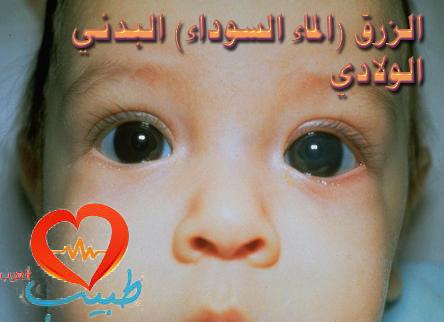 """Photo of الزرق """"الماء السوداء"""" البدئي الولادي Congenital Primary Glaucoma"""
