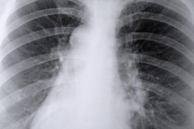 Photo of أسباب ضيق التنفس المزمن