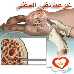طبيب عرب دم خزعة النقي