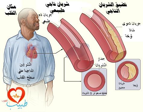 طبيب عرب قلب داء قلب تاجي