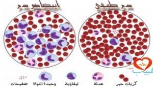 طبيب ع دم ابيضاض لمفاوي مزمن