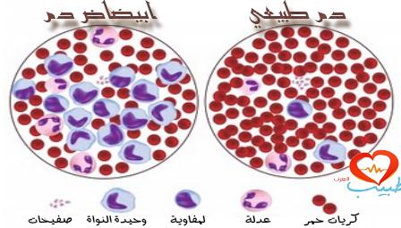 Photo of دواء جديد للوكيميا يعطّل استقلاب الخلايا الورميّة