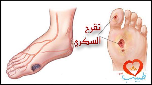 قرحة القدم السكرية Diabetic Foot Ulcer